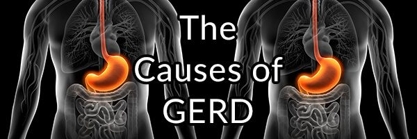The Causes of GERD and the Problem with Conventional Treatments