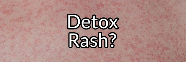 Detox Rash: Myth or Fact?