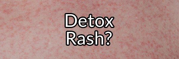Detox Rash: Myth or Fact?